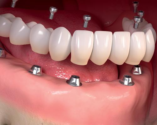 Resultado de imagem para dental implantat