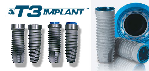 3i Implant