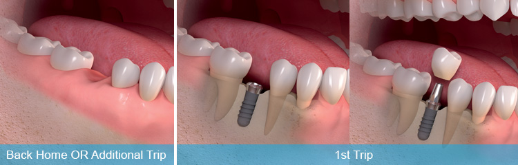 Immediate Loaded Dental Implants