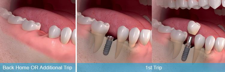 Immediate Loaded Dental Implants