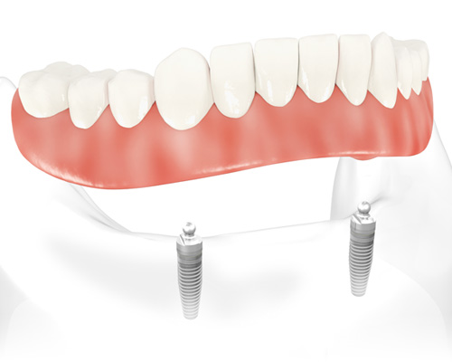 Implant Supported Overdentures Procedures 4