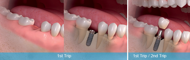 Same day dental implants and one day implants