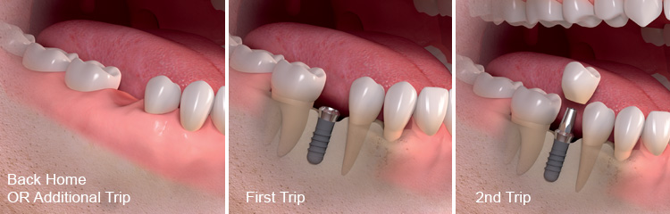 standard dental implant process