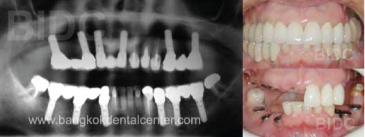 Full-Mouth-Dental-Implants-with-Fixed-Bridges